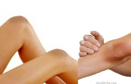 رفع تیرگی قوزک پا و آرنج و زانو